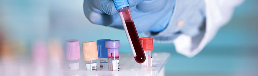 IVF Laboratory Tests cost in Siliguri